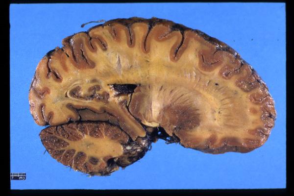 Brain Tumor Types Risk Factors and Symptoms