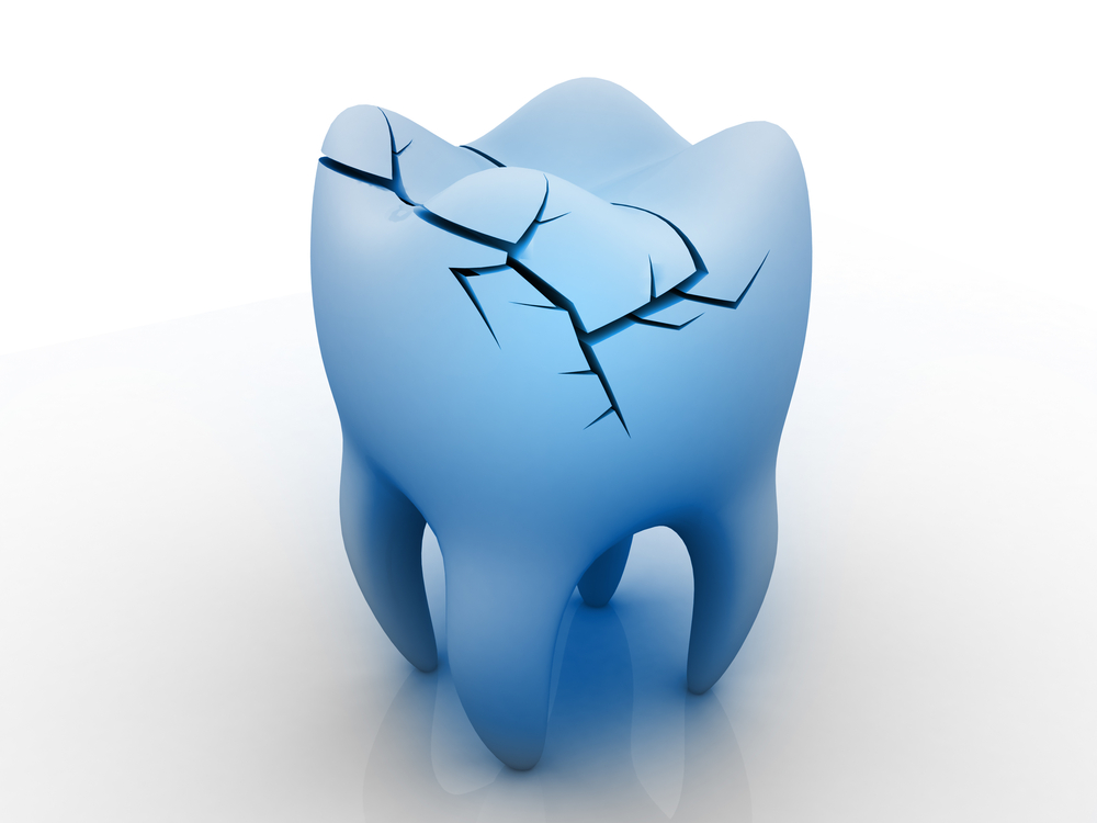 Can a fractured tooth be fixed